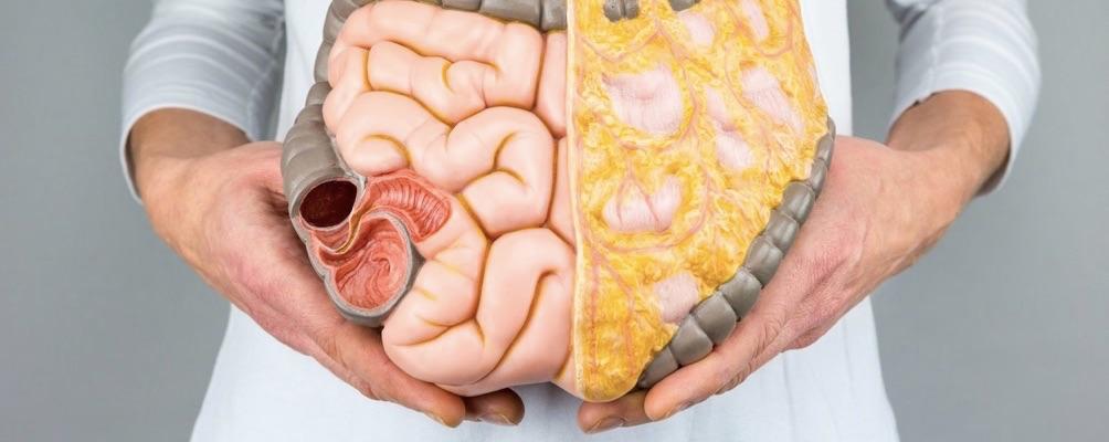 Prevención de cáncer de colon